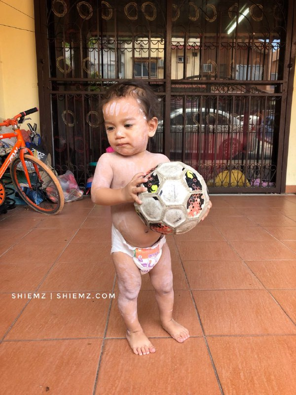 demam campak chicken pox bola
